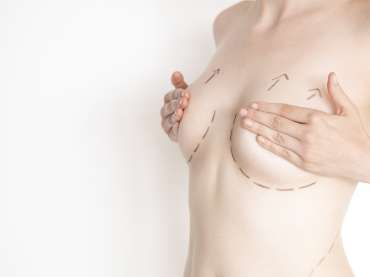 Am I a good candidate for a Breast Lift?